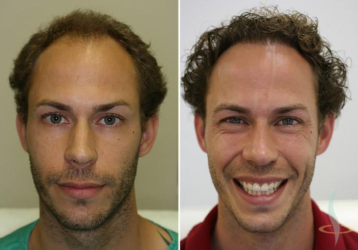Links: vorher / rechts: nach zweiter Operation