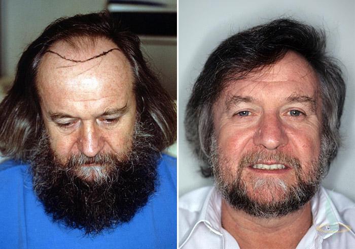 Links: vorher / rechts: 1,5 Jahre nach 2. Operation