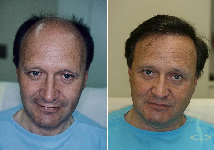 Links: vorher / rechts: nach dritter Operation