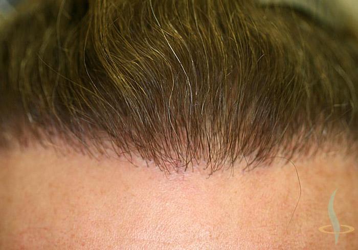 Haaransatz nach zweiter Operation