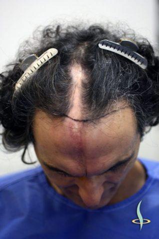 Vor der ersten Operation mit eingezeichneter Haarlinie
